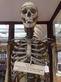 Burkes Skeleton